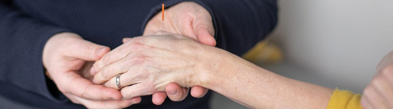 Akupunkturnadel an der Hand Punkt Di4